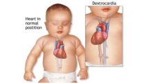 201609130845190939_heart-defects-in-children_secvpf-350x199